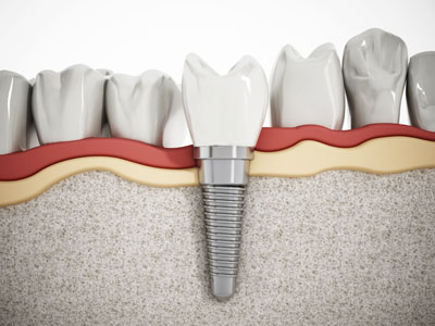 An Implant Dentist Can Replace Your Dentures With A Secure Prosthetic