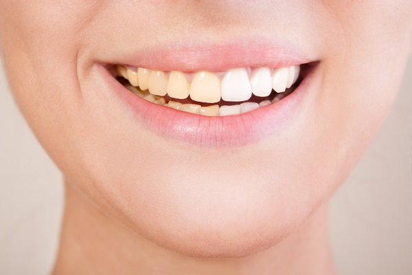 Can Cosmetic Dentistry Cover Permanent Tooth Stains?